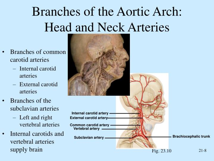 Branches of the Aortic Arch: