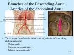 branches of the descending aorta arteries of the abdominal aorta