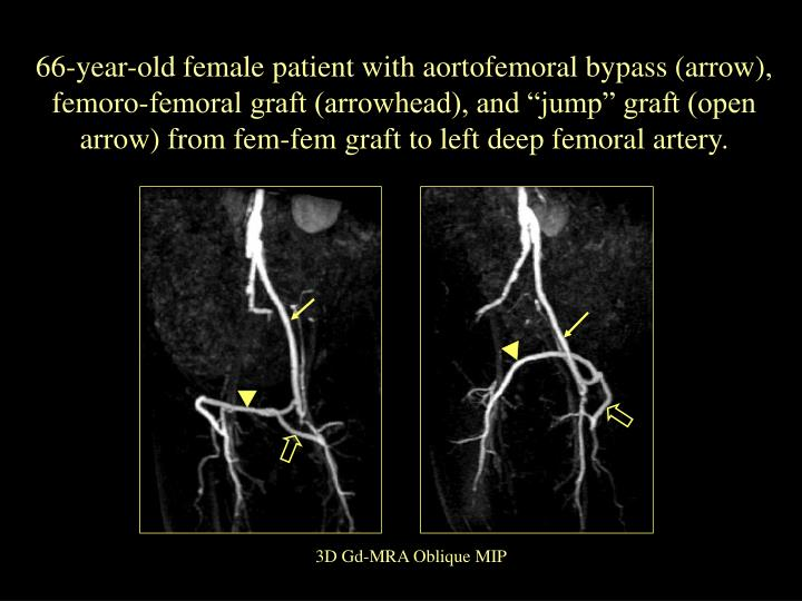 """66-year-old female patient with aortofemoral bypass (arrow), femoro-femoral graft (arrowhead), and """"jump"""" graft (open arrow) from fem-fem graft to left deep femoral artery."""