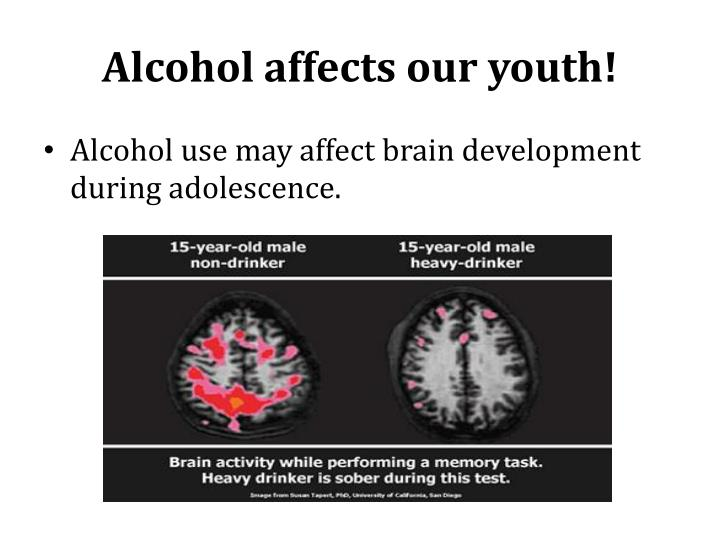 Alcohol affects our youth!