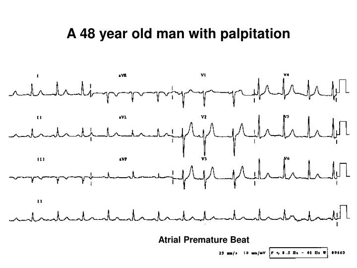 A 48 year old man with palpitation