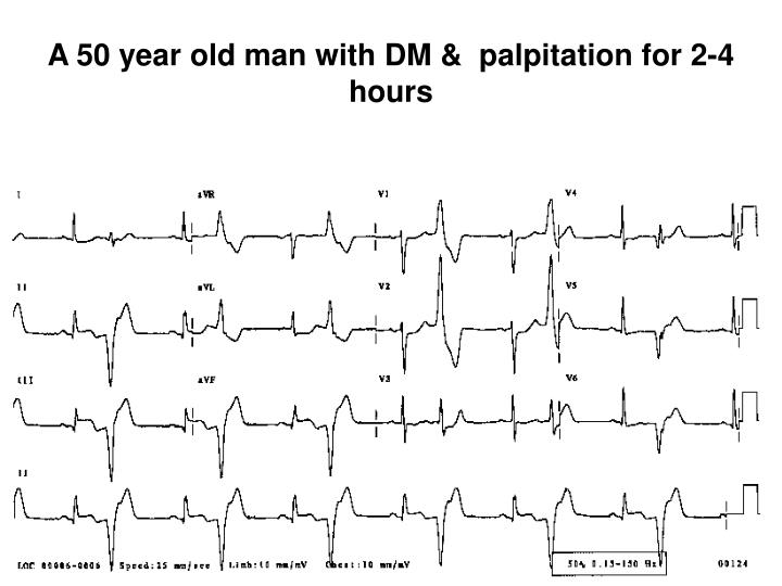 A 50 year old man with DM &  palpitation for 2-4 hours