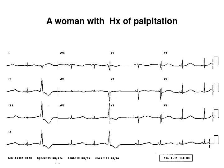 A woman with  Hx of palpitation