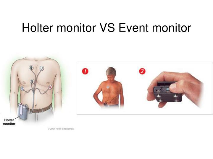 Holter monitor VS Event monitor