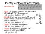 identify ventricular tachycardia
