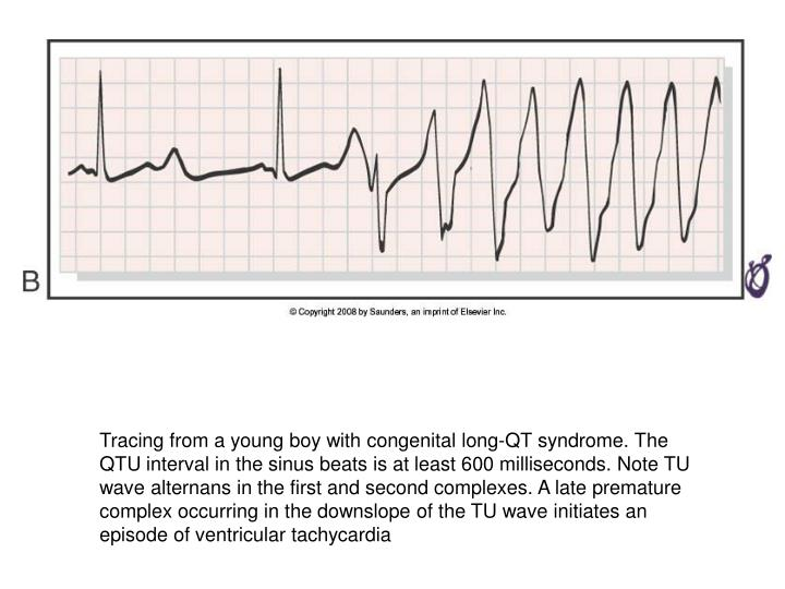 Tracing from a young boy with congenital long-QT syndrome. The QTU interval in the sinus beats is at least 600 milliseconds. Note TU wave alternans in the first and second complexes. A late premature complex occurring in the downslope of the TU wave initiates an episode of ventricular tachycardia