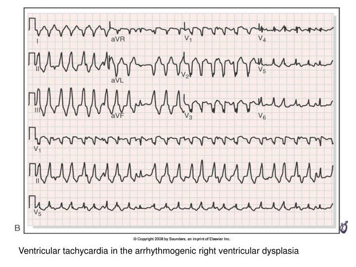 Ventricular tachycardia in the arrhythmogenic right ventricular dysplasia