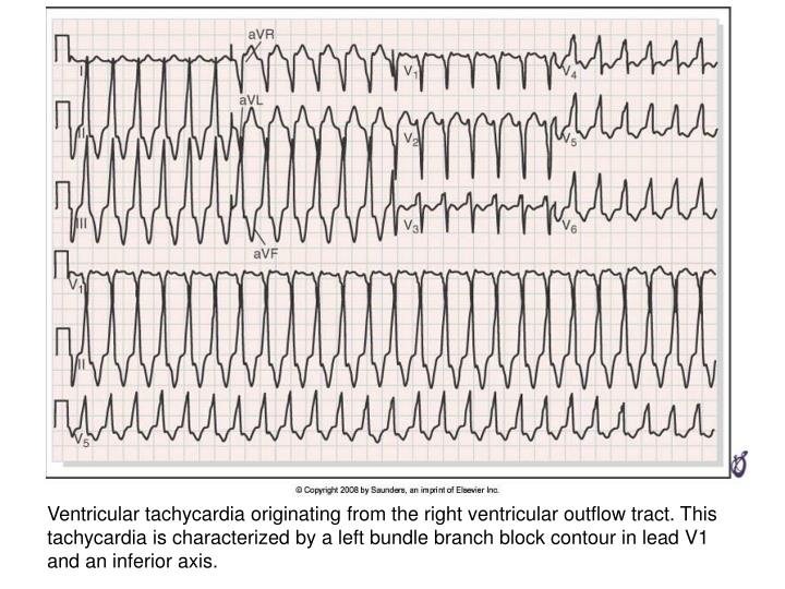 Ventricular tachycardia originating from the right ventricular outflow tract. This tachycardia is characterized by a left bundle branch block contour in lead V1 and an inferior axis.
