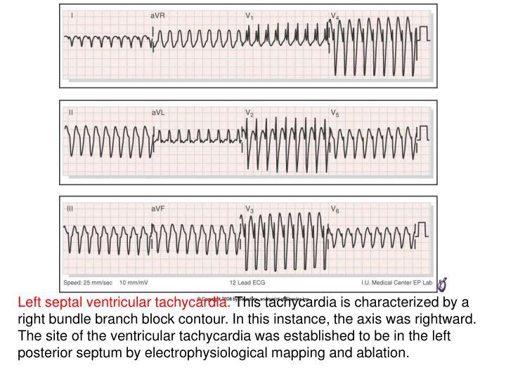 Left septal ventricular tachycardia.
