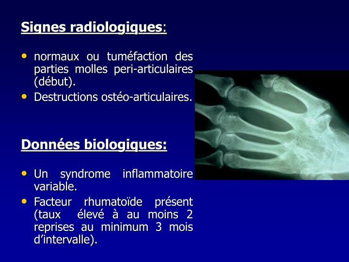Signes radiologiques