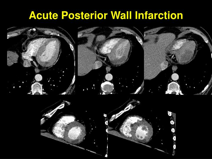Acute Posterior Wall Infarction