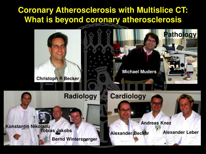 Coronary atherosclerosis with multislice ct what is beyond coronary atherosclerosis