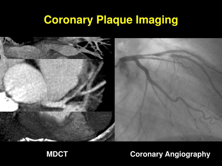Coronary Plaque Imaging