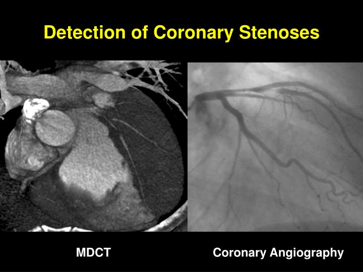 Detection of Coronary Stenoses