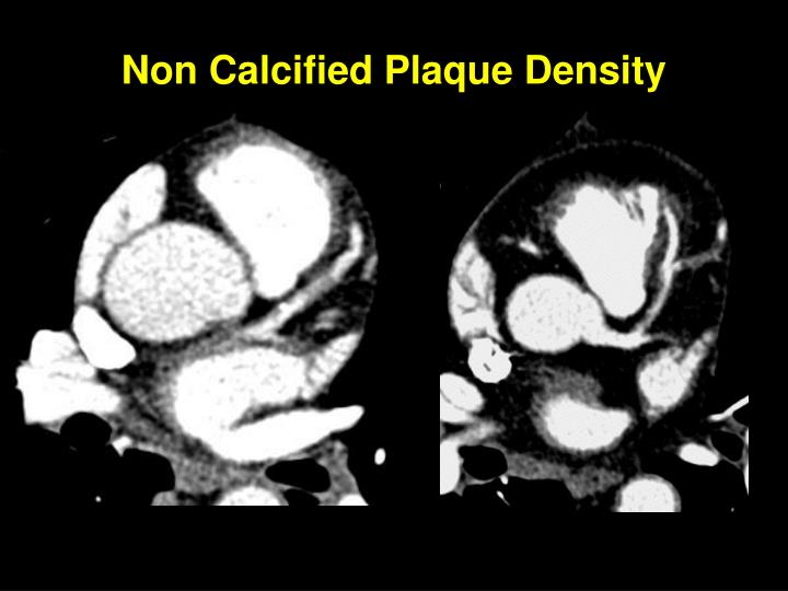 Non Calcified Plaque Density