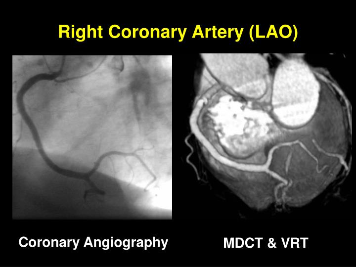 Right Coronary Artery (LAO)