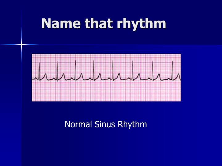Name that rhythm