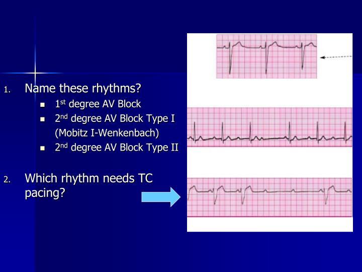 Name these rhythms?