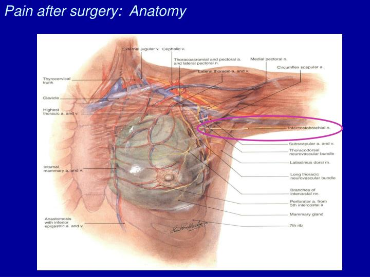 Pain after surgery:  Anatomy