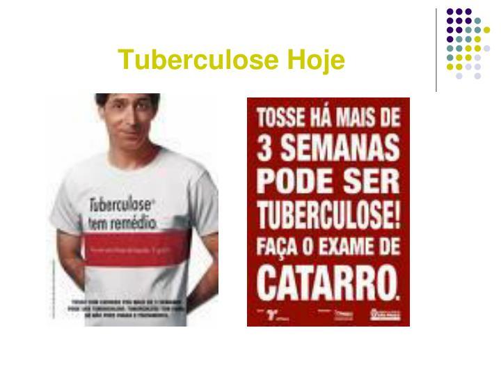 Tuberculose Hoje