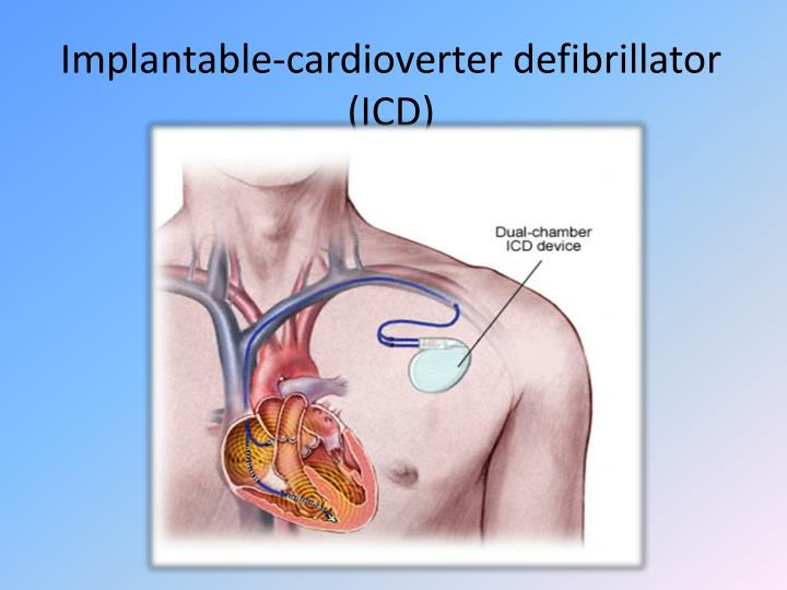 Implantable-cardioverter
