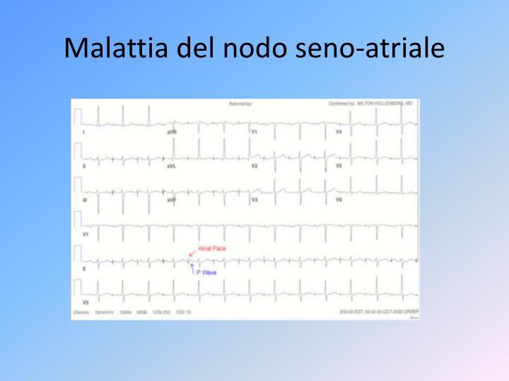 Malattia del nodo seno-atriale