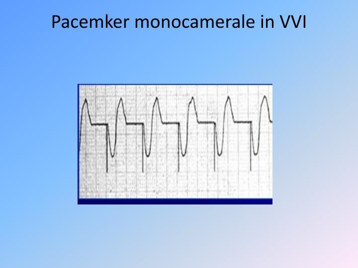 Pacemker