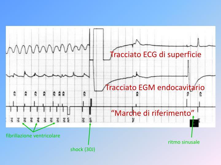 Tracciato ECG di superficie