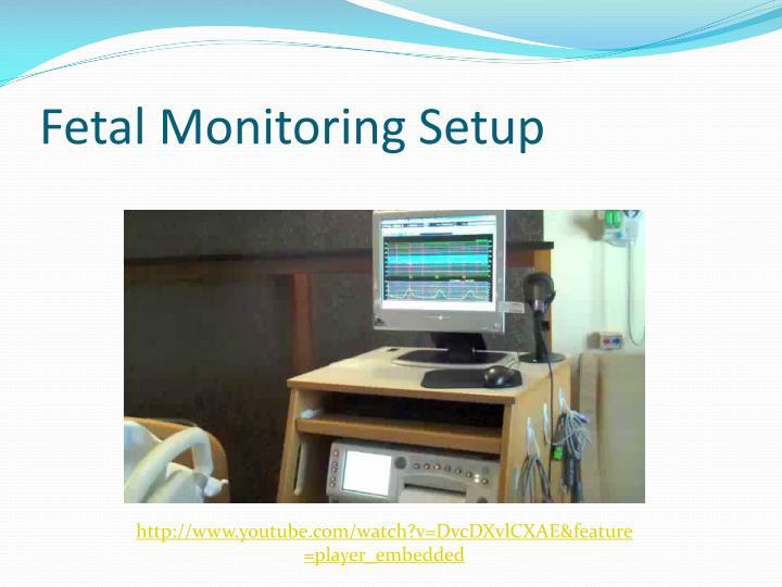 Fetal Monitoring Setup