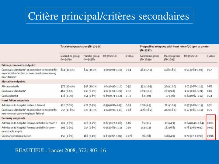 Critère principal/critères secondaires
