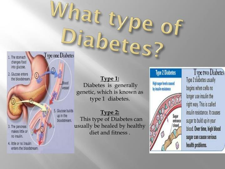 What type of Diabetes?