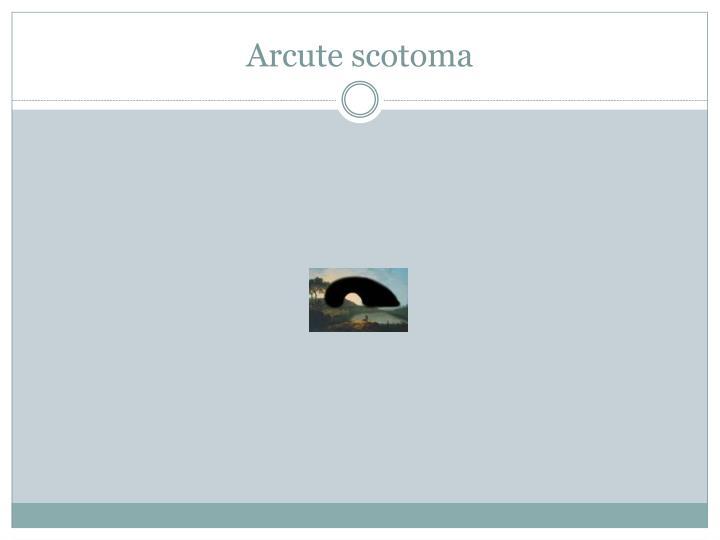 Arcute