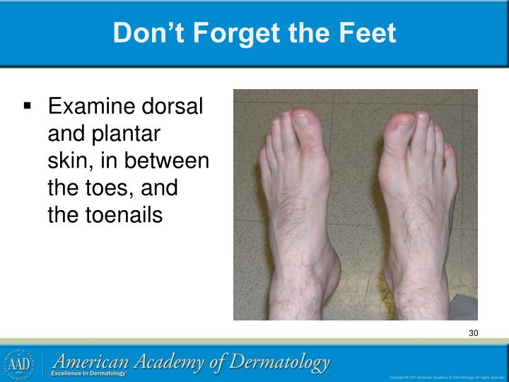 Don't Forget the Feet