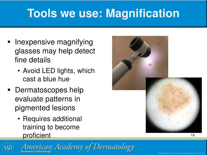 Tools we use: Magnification