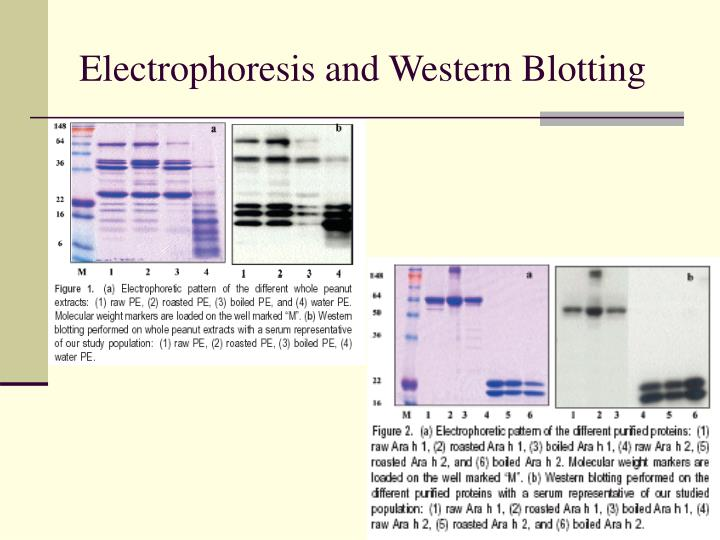 Electrophoresis and Western Blotting