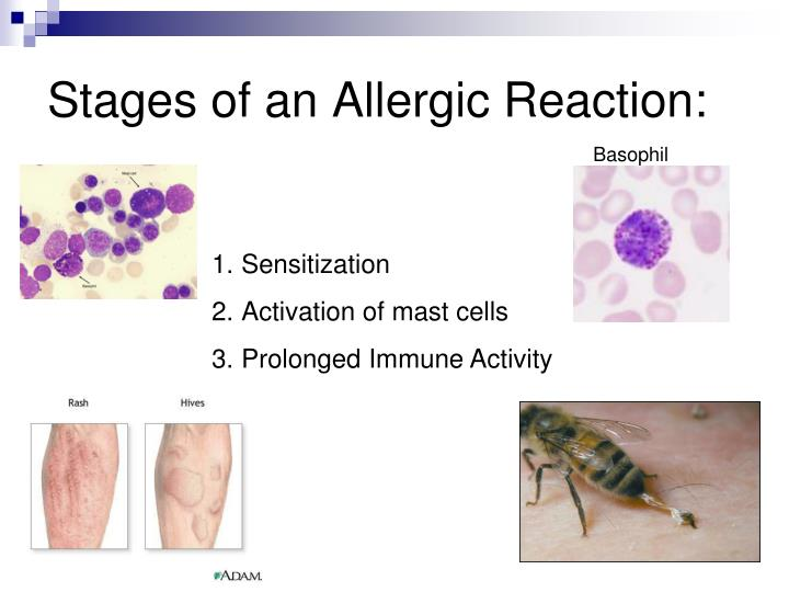 Stages of an Allergic Reaction: