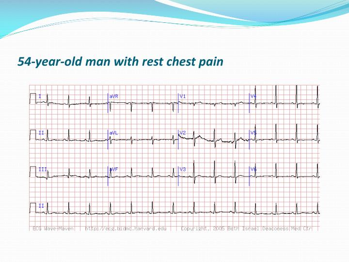 54-year-old man with rest chest pain