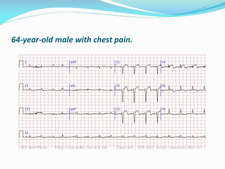 64-year-old male with chest pain.