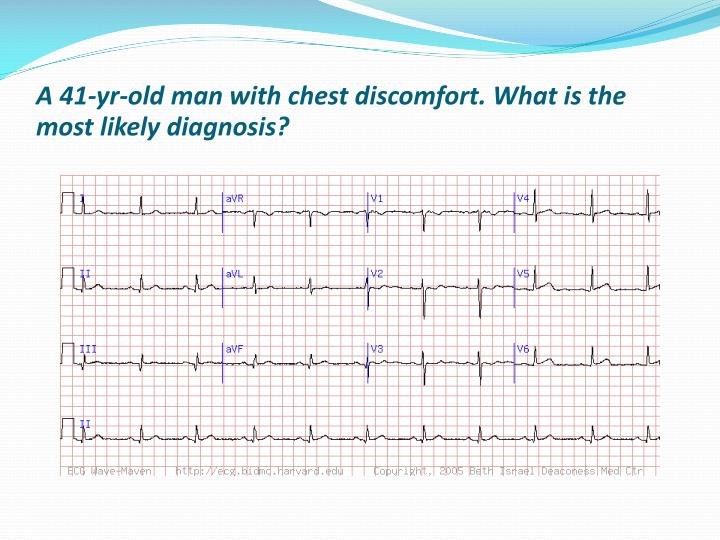 A 41-yr-old man with chest discomfort. What is the most likely diagnosis?