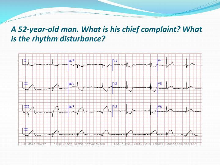 A 52-year-old man. What is his chief complaint? What is the rhythm disturbance?