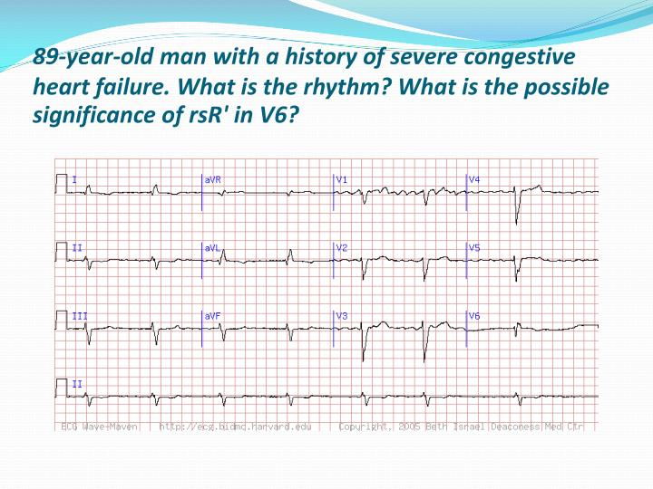 89-year-old man with a history of severe congestive heart failure. What is the rhythm? What is the possible significance of rsR' in V6?