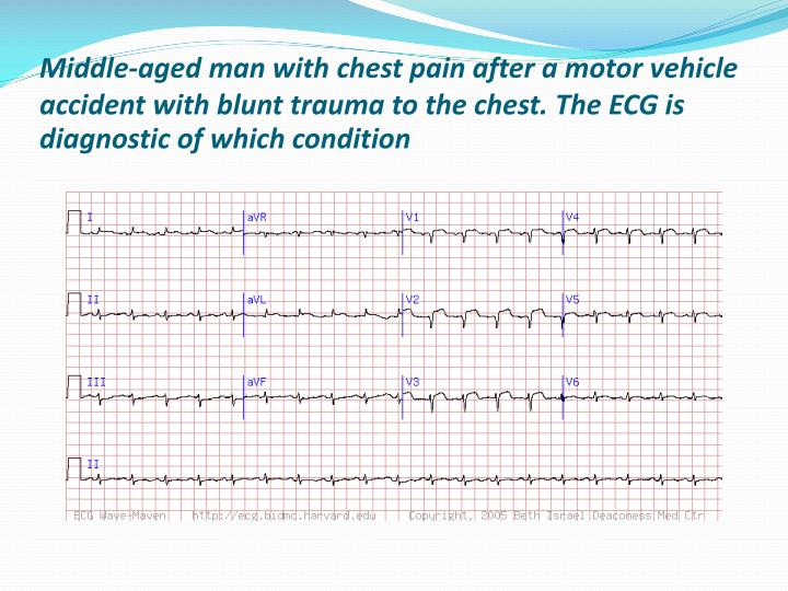 Middle-aged man with chest pain after a motor vehicle accident with blunt trauma to the chest. The ECG is diagnostic of which condition