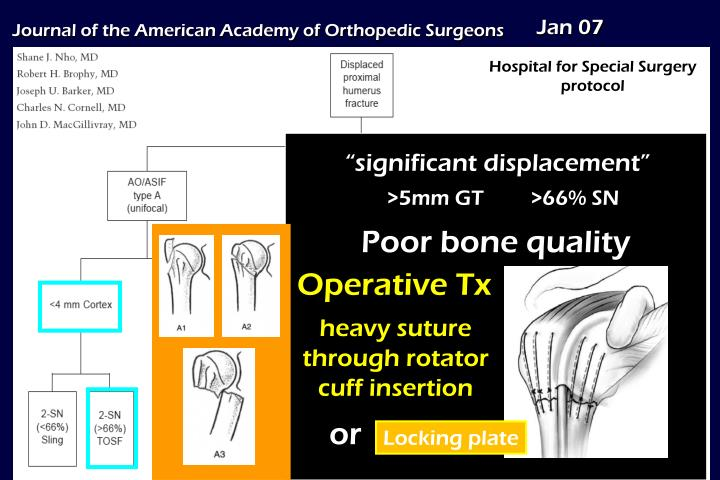 Operative Tx