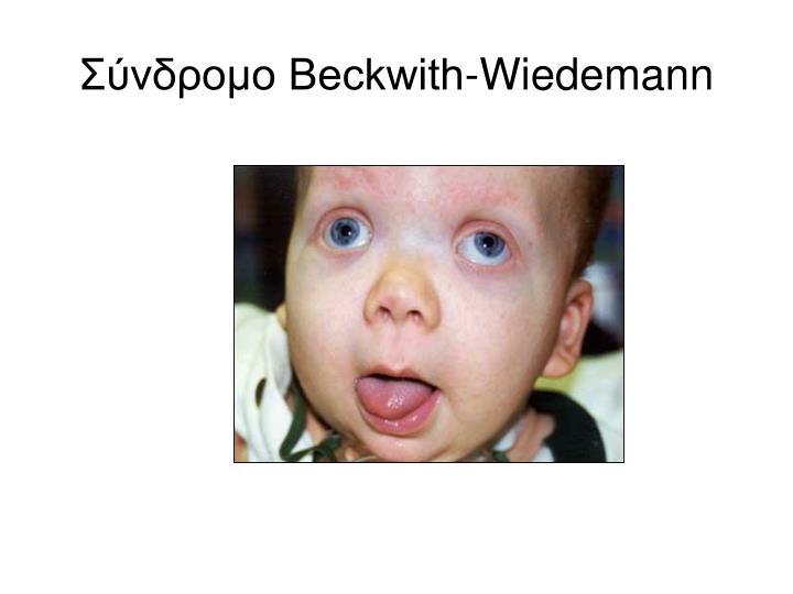 Σύνδρομο Beckwith-Wiedemann