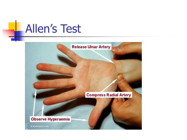 Allen's Test
