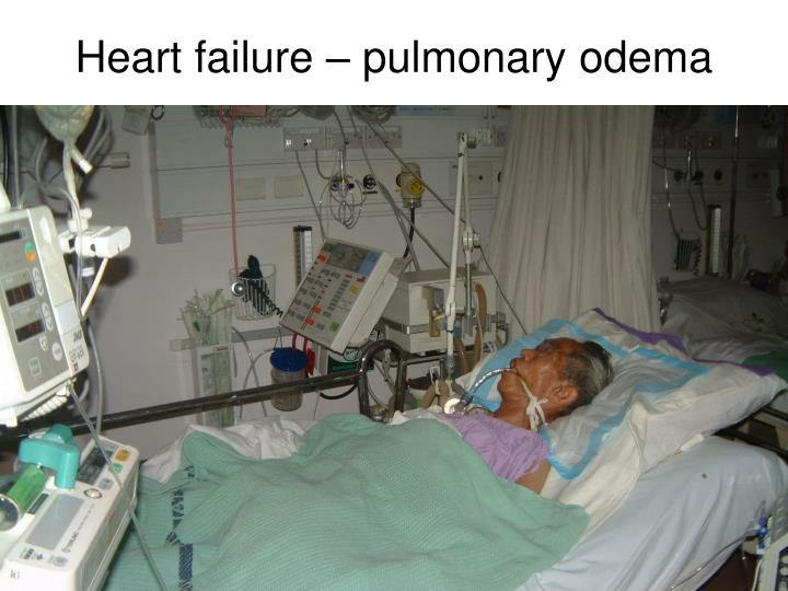 Heart failure – pulmonary odema