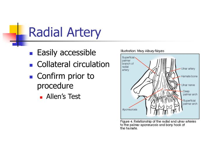Radial Artery