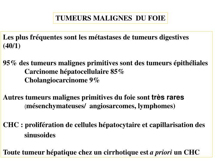 TUMEURS MALIGNES  DU FOIE