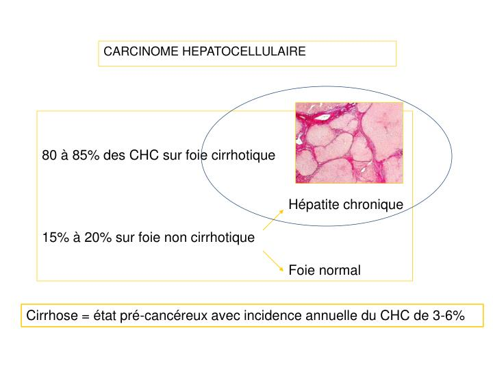 CARCINOME HEPATOCELLULAIRE