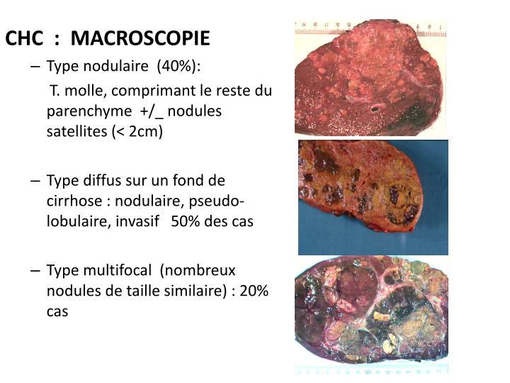 CHC  :  Macroscopie